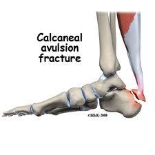 calcaneal avulsion fracture