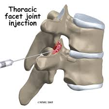 Thoracic Spine Joint Dysfuction