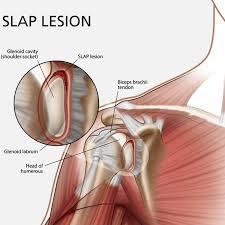 Slap_lesion