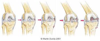 Medial Collateral Ligament Injuries