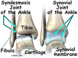 Syndesmosis Injuries 2