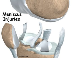 meniscus-injuries